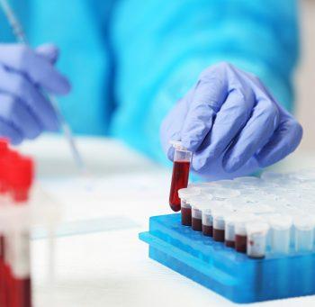 Jakie są normy potasu we krwi? Sprawdź