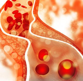 Cholesterol w krwi